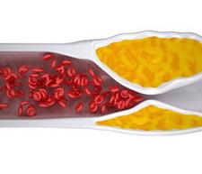 érelmeszesedés K2-vitamin kapszula